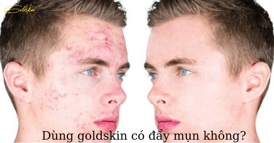 Dùng goldskin có đẩy mụn không?