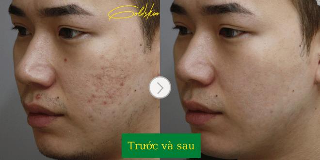Da mặt khi sử dụng serum đều đặn
