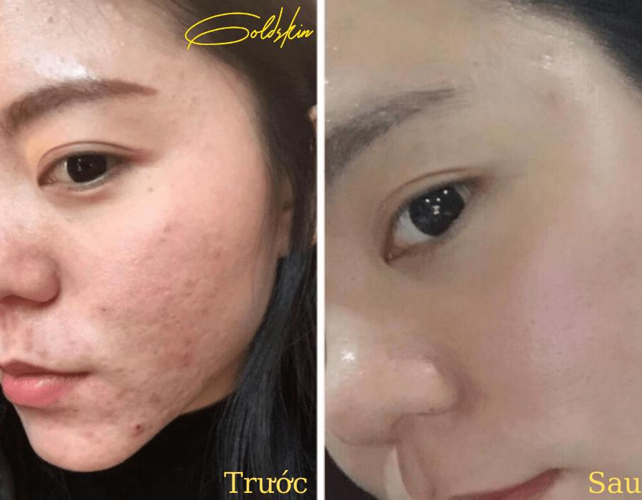 Làn da khỏe khoắn sạch mụn