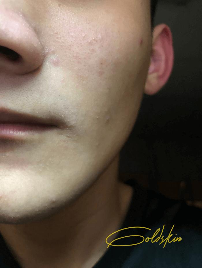 Da tôi dần phục hồi và trở lại bình thường