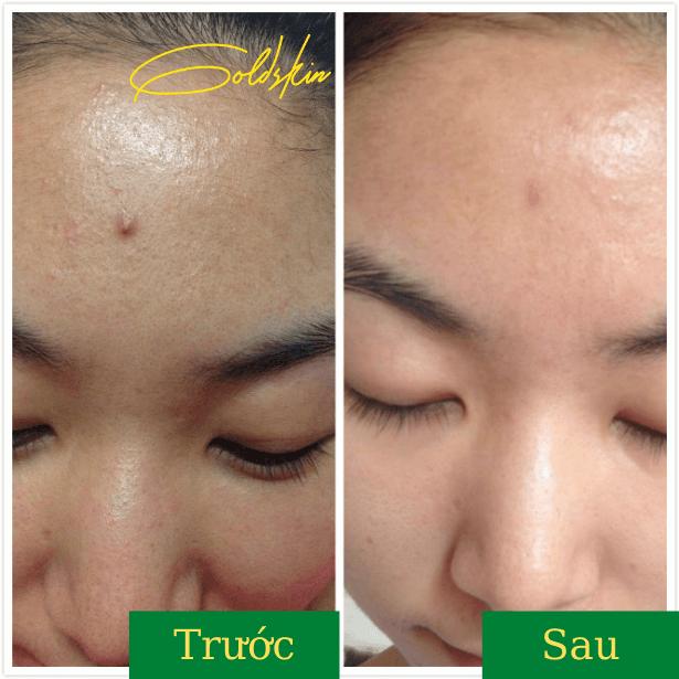 Da mặt sáng đẹp sạch mụn sau khi dùng đều đặn 3 tuần