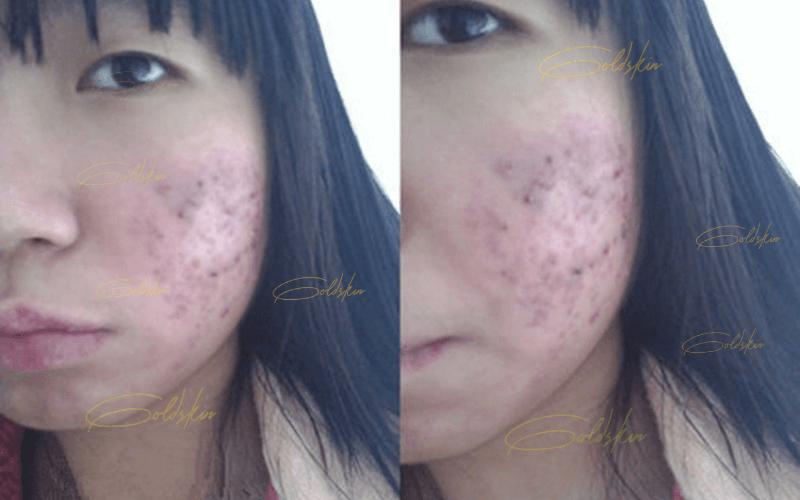 Da bị mụn nặng, tổn thương gây thâm khi dùng sản phẩm k rõ nguồn gốc