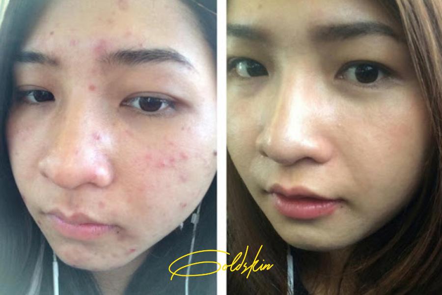 Trước và sau khi dùng serum