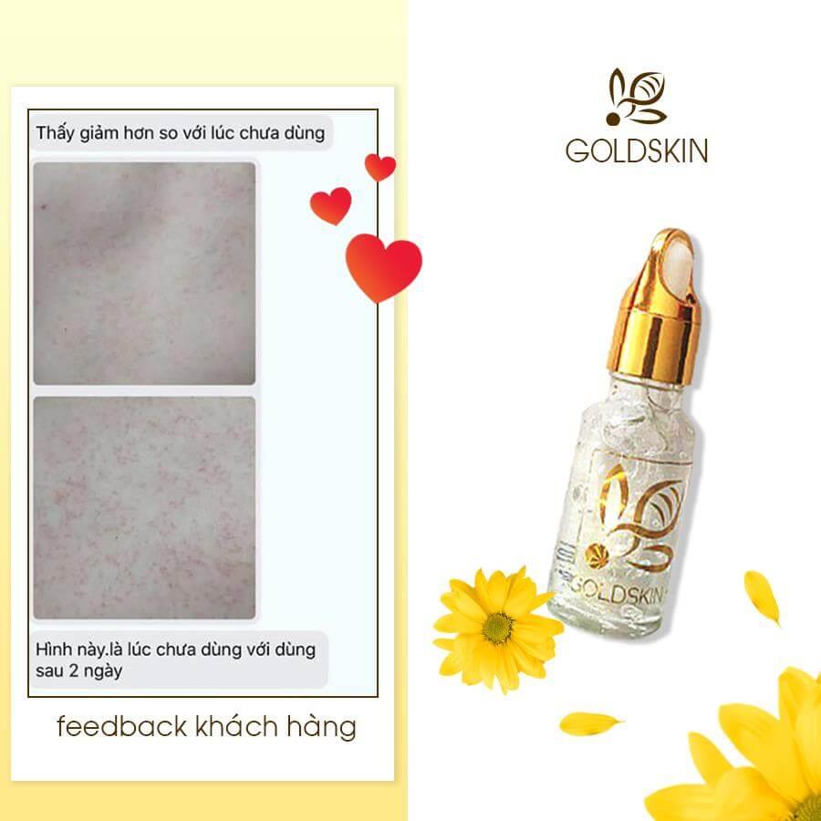 Serum trị mụn Goldskin lành tính được kiểm duyệt chặt chẽ từ Bộ Y tế và là sự lựa chọn của nhiều khách hàng