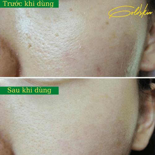 Trước và sau khi trị mụn