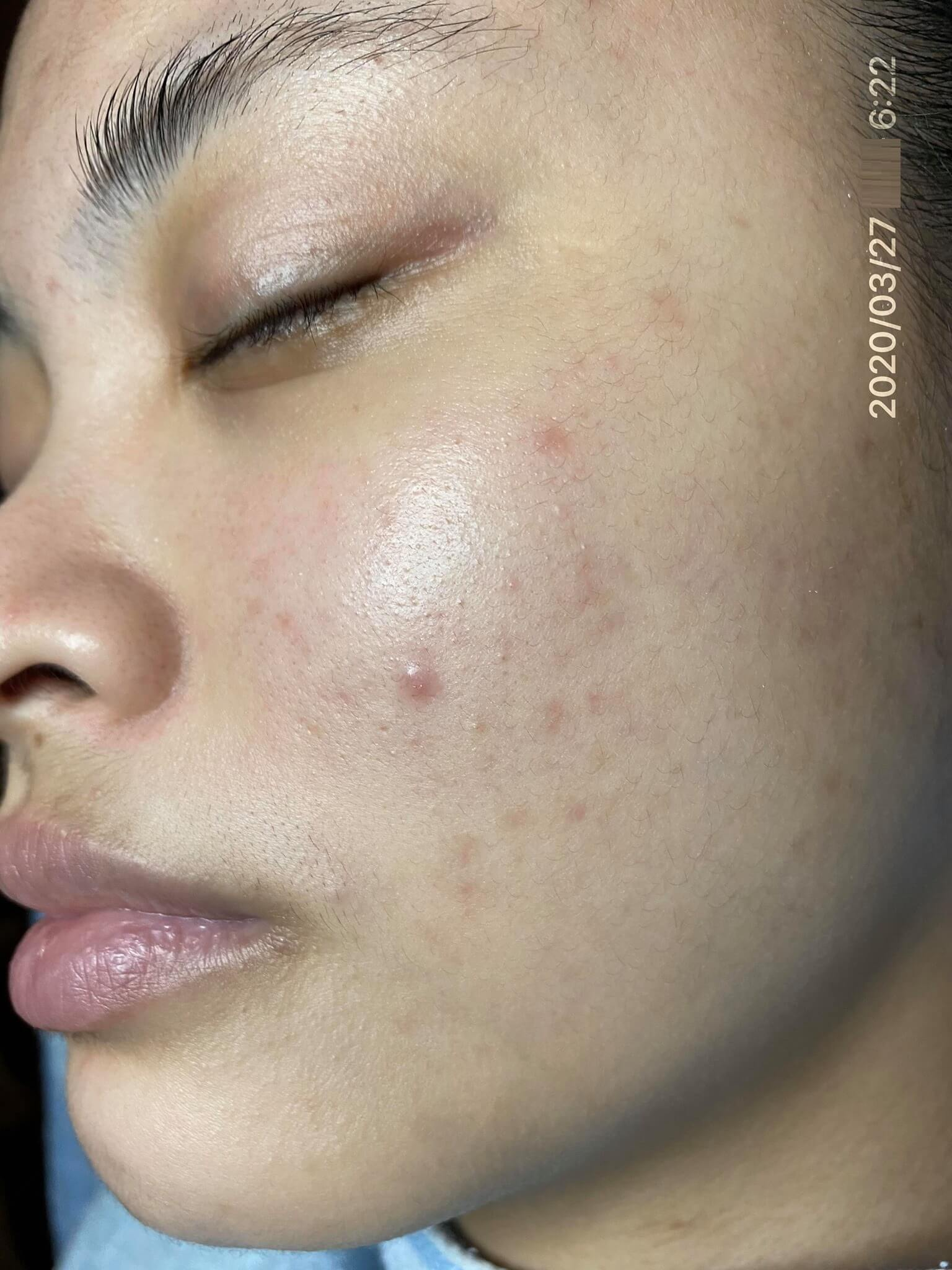 Mụn trên da tối cải thiện rất nhiều chì sau thời gian ngắn sử dụng Goldskin