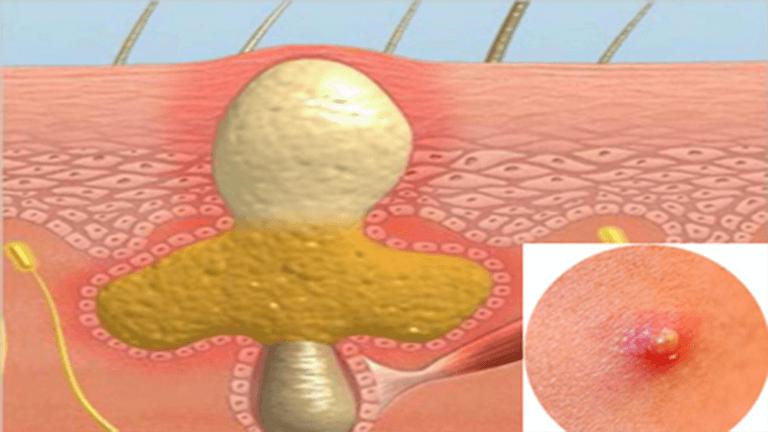 Rối loạn nội tiết tố bên trong cơ thể là nguyên nhân gây mụn nhọt