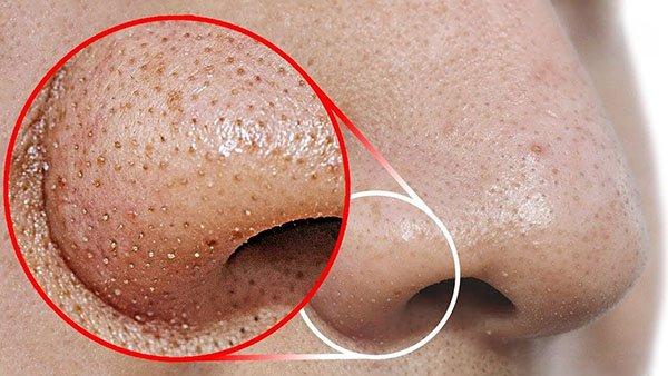 Việc điều trị dứt điểm mụn đầu đen được xem là không thể