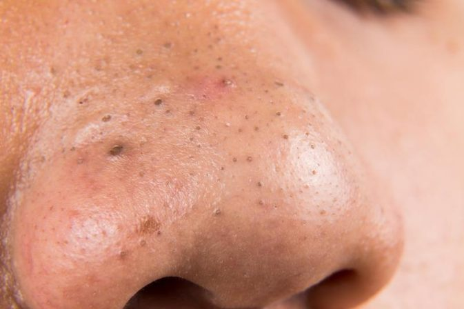 Vùng mũi là khu vực thường xuyên tiết dầu nên tập trung nhiều mụn đầu đen