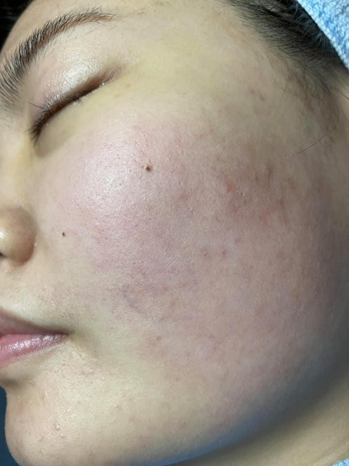 Giờ đây thì da tôi ngoài việc sạch mụn còn kiềm dầu, không bị tình trạng da dầu nhờn như trước kia nữa