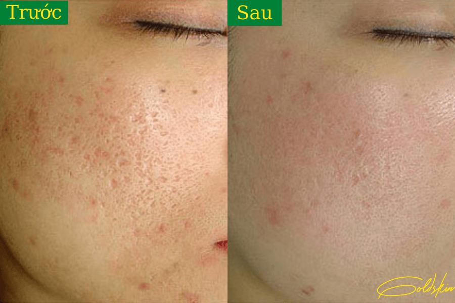 Da mặt sau khi dùng Goldskin