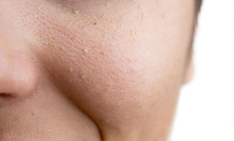 Đốt mụn thịt là phương pháp dùng tia laze có bước sóng nhỏ phá vỡ mô liên kết của các đốm mụn trên da