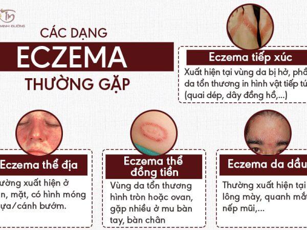 Các dạng bệnh Ezecma phổ biến