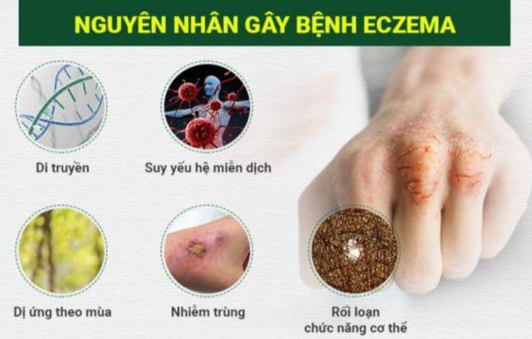 Những nguyên nhân gây bệnh Ezecma