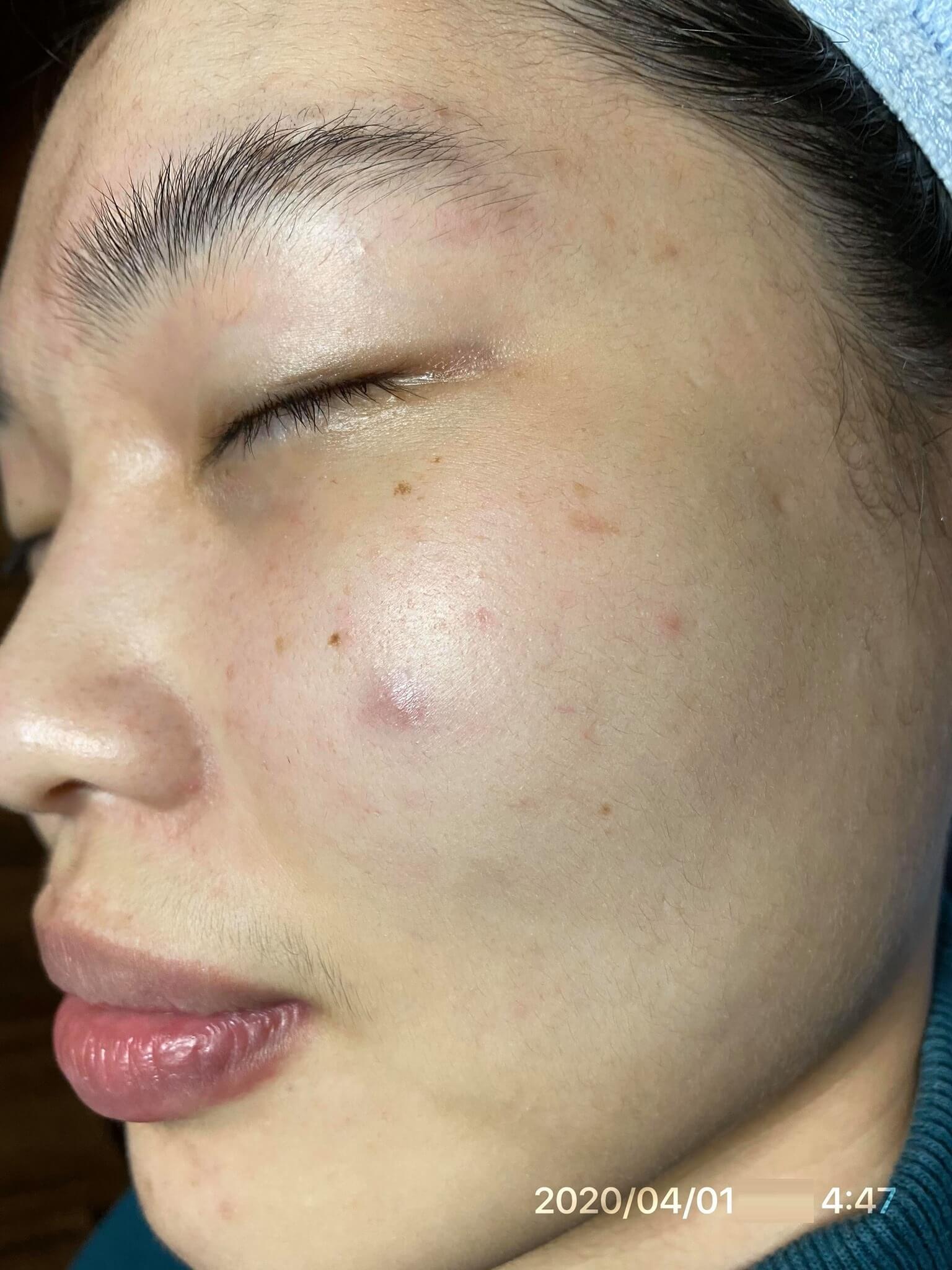 Da tôi đã sạch mụn gần như hoàn toàn, lại còn căng bóng mịn màng hơn sau khi dùng Goldskin