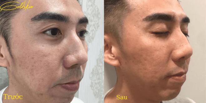 hình ảnh trước và sau khi trj mụn bằng goldskin