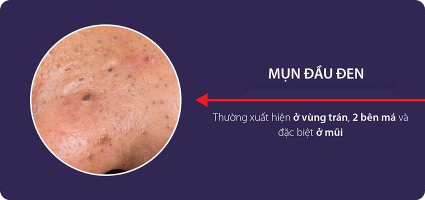 Mụn đầu đen thường xuất hiên tại các vùng da có tuyến bã nhờn hoạt động mạnh