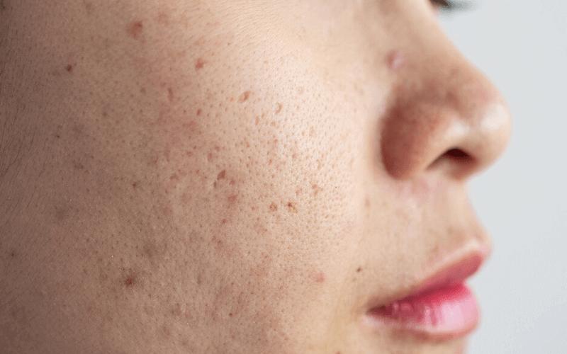 Mụn ẩn là mụn có kích thước nhỏ liti có nhân nằm sâu trong da và mọc theo từng vùng