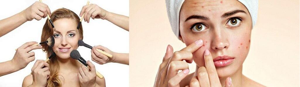 Bên cạnh đó việc lấy tay sờ mặt/nặn mụn hay lạm dụng mỹ phẩm cũng là nguyên nhân khiến mụn ẩn phát triển