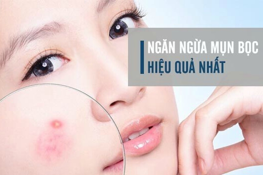 Giữ da sạch là phương pháp phòng chống mụn bọc đơn giản nhất
