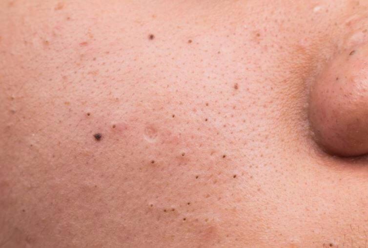 Mụn đầu đen thường xuất hiện tại các bạn có làn da dầu/nhờn nhưng không vệ sinh da kỹ