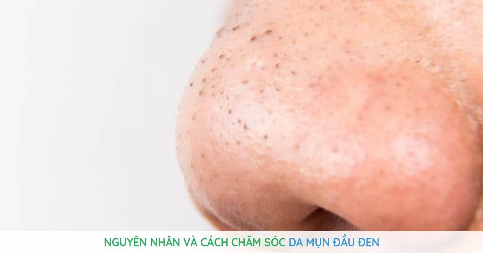 Có thể dùng các sản phẩm trị mụn như thuốc, kem, serum,... để cải thiện mụn đầu đen