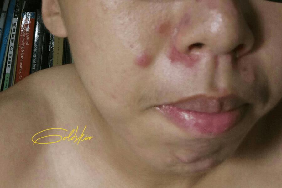 Mụn đinh râu mọc ngay vòm miệng gây đau nhức