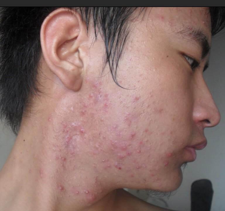 da mặt bị mụn ngay quai hàm