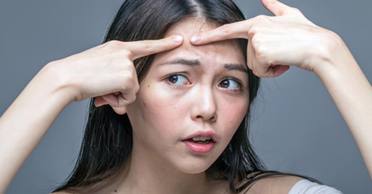 Không nặn mụn để ngăn vi khuẩn lây lan gây mụn các vùng da khác