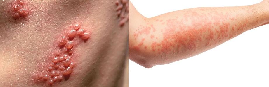 Bệnh ezecma (chàm) và herpes (mụn rộp) là nguyên nhân phổ biến gây nổi mụn nước khắp người