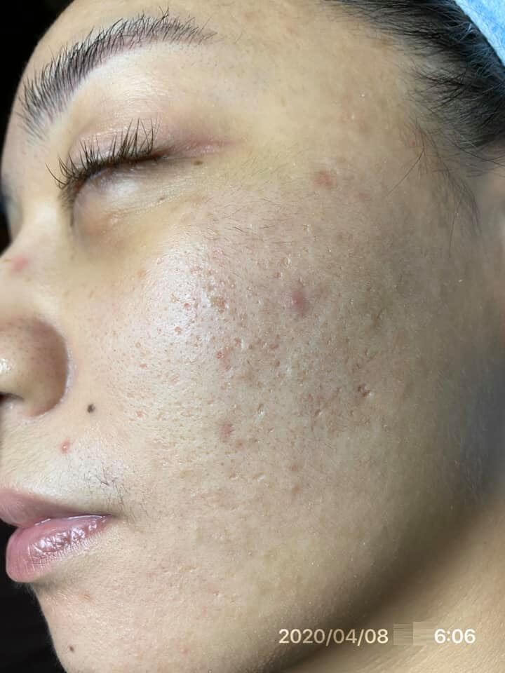 Do da tôi thuộc loại da dầu và cũng hơi nhạy cảm nên việc tìm sản phẩm rất khó khăn và mất nhiều thời gian