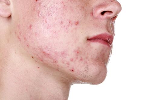 Nên tùy theo tình trạng da để có thể chọn được sản phẩm phù hợp nhất