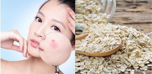 Ngoài ra, bột yến mạch còn có thể kết hợp với nhiều nguyên liệu sẵn có khác cũng giúp cải thiện tình trạng mụn rất tốt