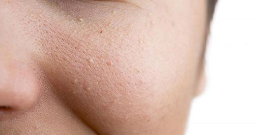 Mụn ẩn hiểu đơn giản là mụn có nhân ẩn trong da