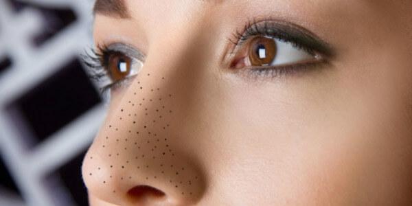 Mũi là vùng có tuyến bã nhờn hoạt động mạnh mẽ nhất nên mụn đầu đen tập trung nhiều nhất