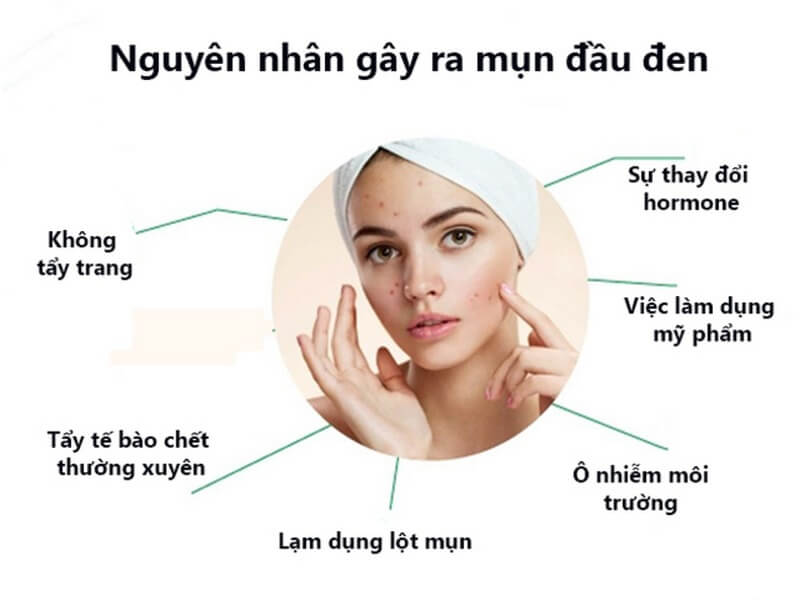 Nhiều nguyên nhân có thể gây ra mụn đầu đen