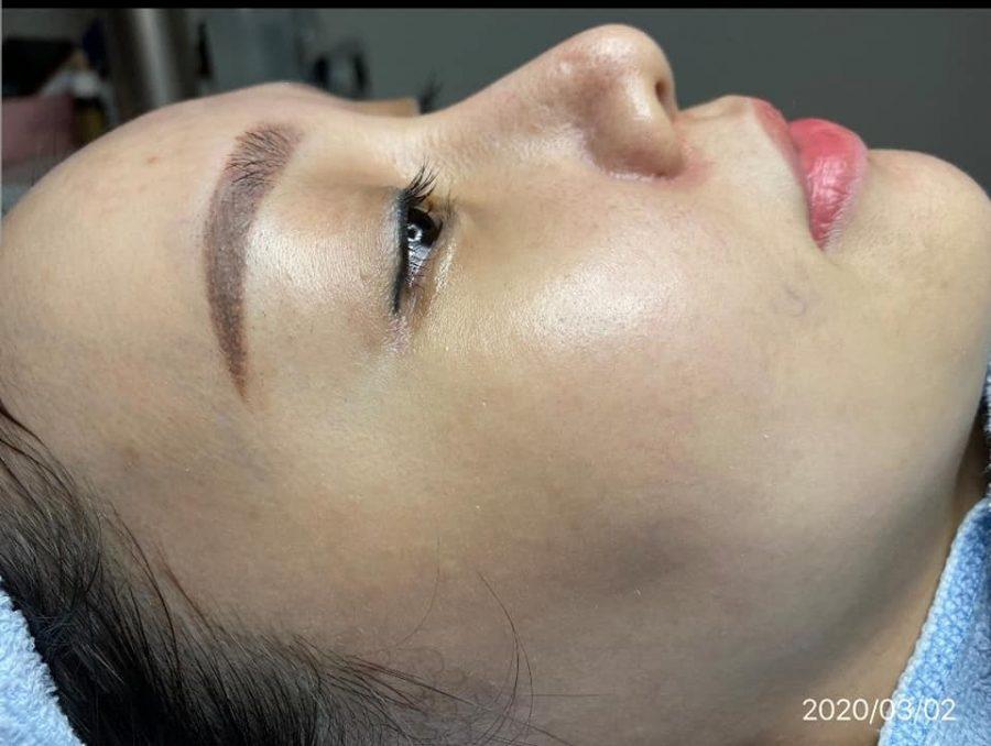 Sau khi dùng 1 tháng thì da mặt tôi hoàn toàn sạch mụn, các vết thâm giảm hơn 90% và da đàn hồi, săn chắc hơn trước rất nhiều