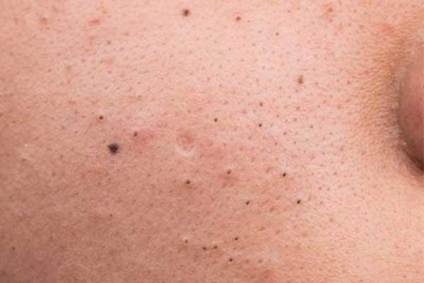 Mụn đầu đen là loại mụn thường có màu nâu hoặc đen nằm trên đầu các lỗ chân lông