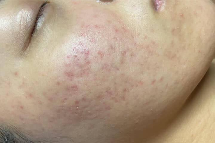 Sau tuần đầu tiên sử dụng, các nốt mụn trên mặt tôi đã hết sưng