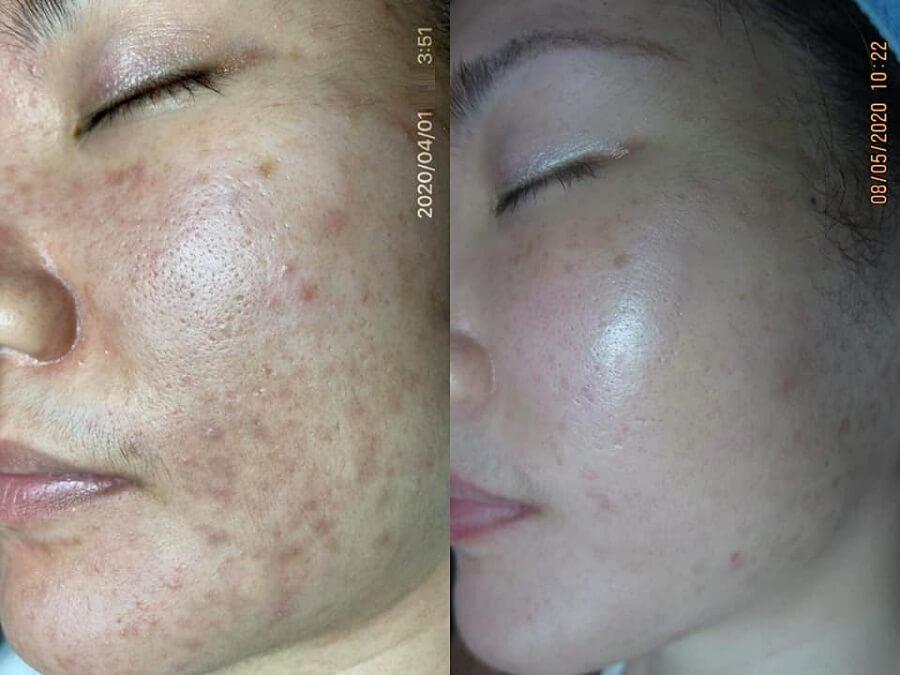 Mụn ẩn hình thành là do tích tụ các chất bẩn trên da, bã nhờn, da chết và gây bít lỗ chân lông