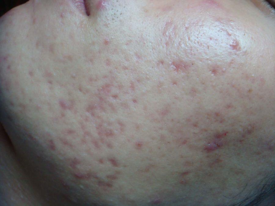 Một tháng sau khi dùng Goldskin mụn trên mặt tôi đã thật sự biến mất da tôi cũng sáng và đều màu hơn rất nhiều