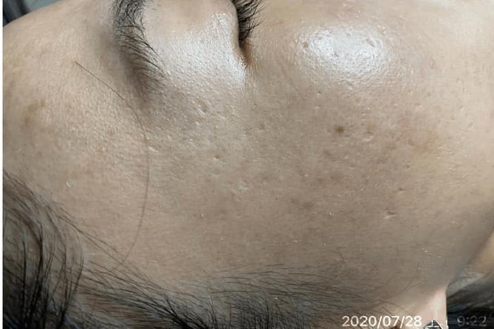 Sản phẩm hiệu quả triệt để nhưng không gây tổn thương da