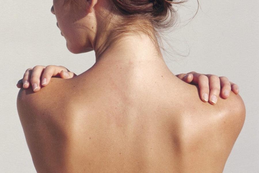 Chỉ sau 1 tháng sử dụng serum Goldskin thì mụn trên vùng da lưng của tôi mụn đã giảm rất nhiều