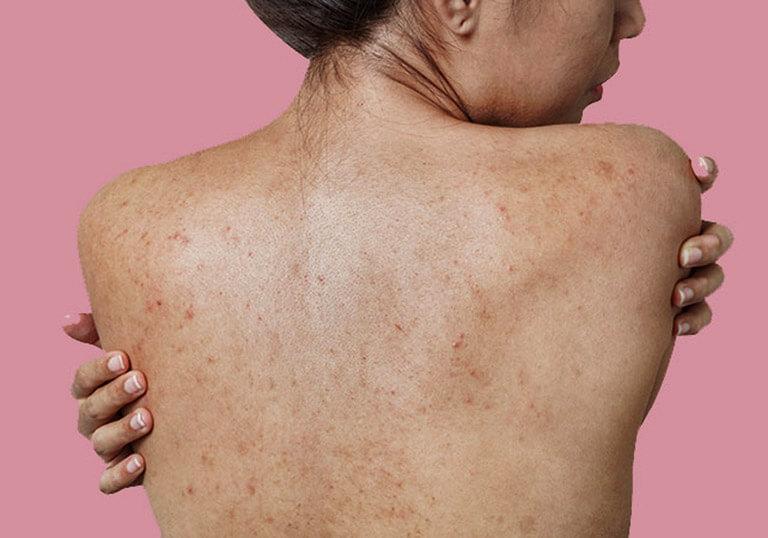 Da tôi thuộc làn da khó chiều, nếu không tìm hiểu kỹ lưỡng thì có thể sẽ không trị được mụn mà còn gây viêm da, dị ứng