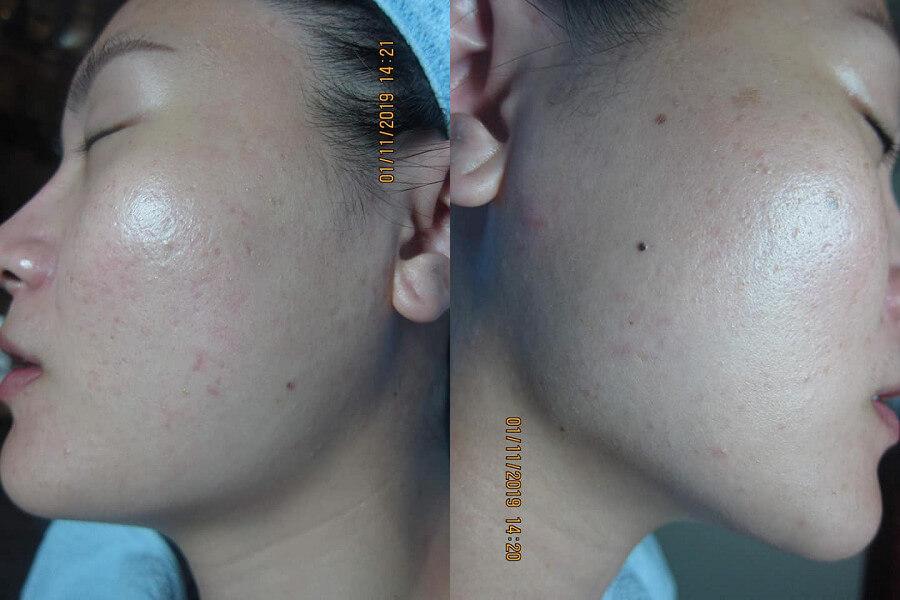 Sau khi sử dụng Goldskin thì mẹ con tôi đã có thể tự tin với làn da đầy sức sống và sạch mụn