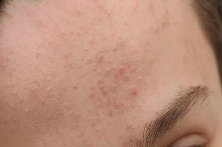 Da mặt trở nên sần sùi vì mụn ẩn