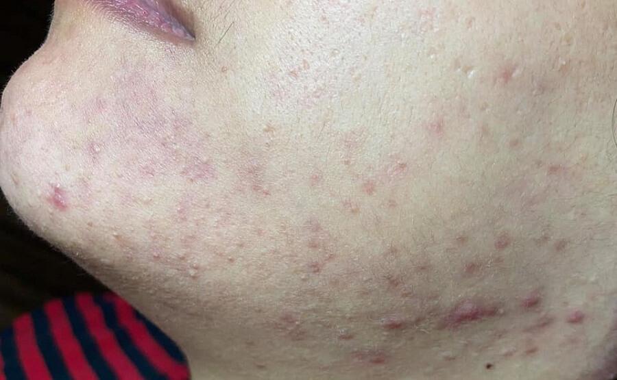 Sử dụng các sản phẩm không rõ nguồn gốc một thời gian khiến da tôi tồi tệ hơn