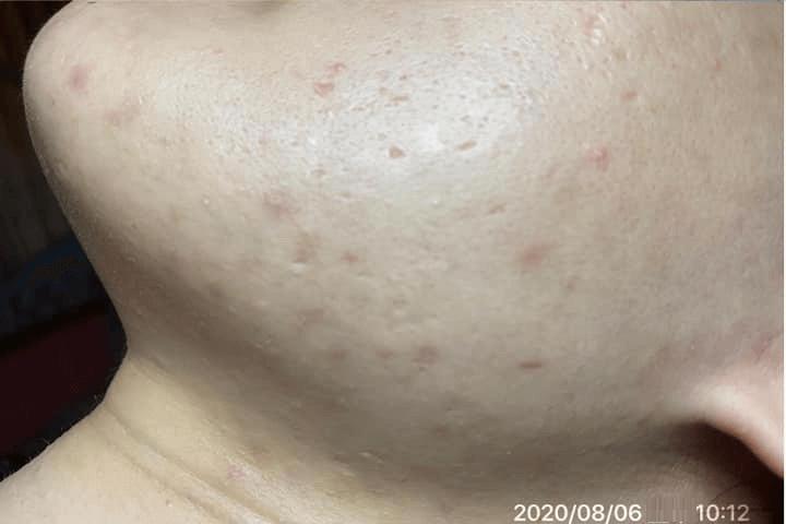 Mụn giảm hẳn khi dùng Goldskin nhưng hoàn toàn không gây bong tróc hay kích ứng da