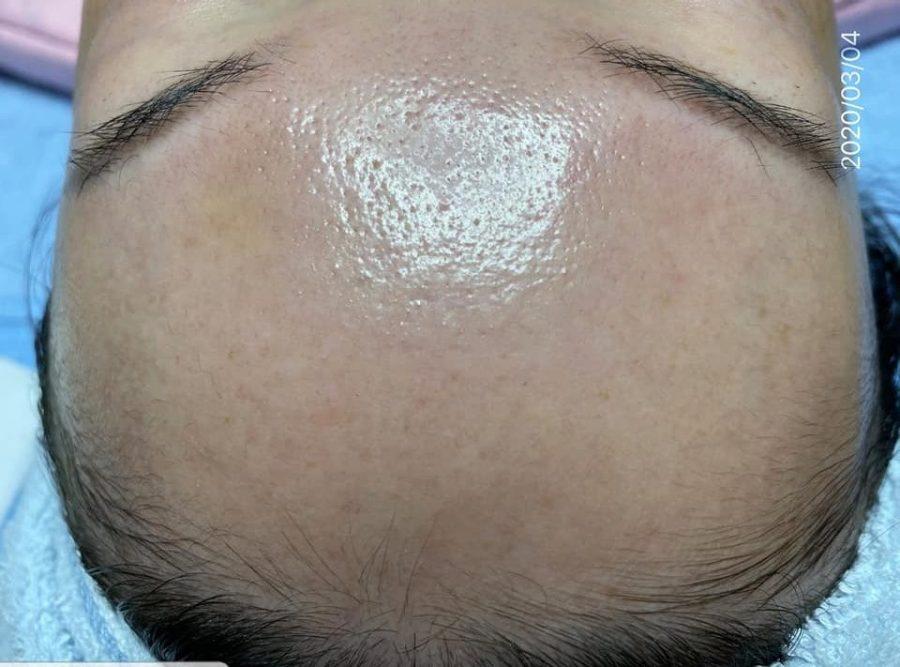 Sản phẩm hiệu quả rõ rệt nhưng hoàn toàn hông gây bong tróc hay kích ứng da