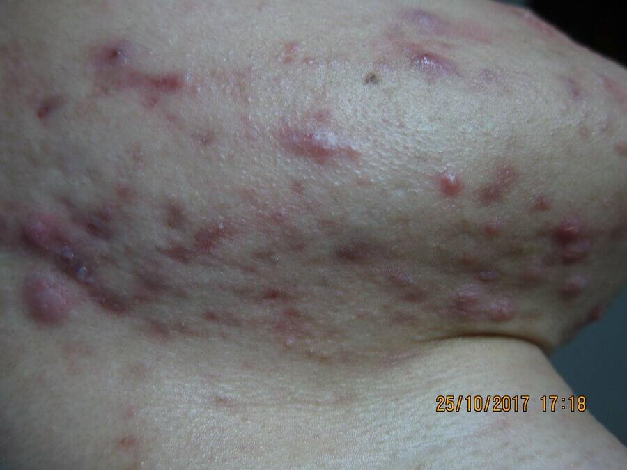 Ban đầu tôi sở hữu làn da không được như người khác mà ngược lại da còn rất xấu vì mụn